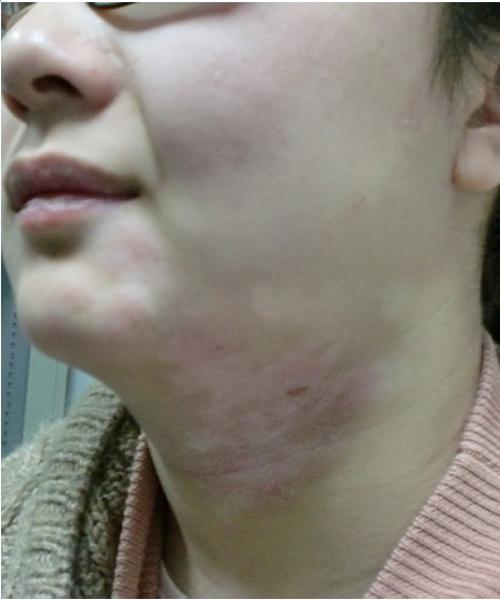 颈部白癜风夏天应该如何护理