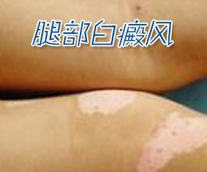 腿部白癜风预防方法有哪些