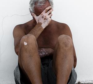 男性白癜风患者在治疗要注意什么呢