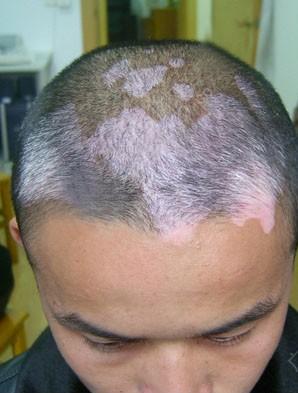 护理头部白癜风的措施有哪些呢