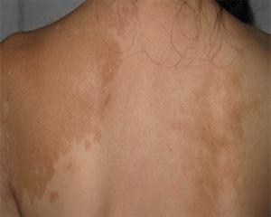 女性背部白癜风病因有哪些