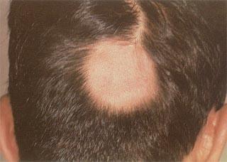 导致男性头部患上白癜风的原因有哪些