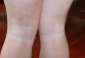 腿部白癜风应该如诊断