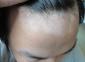 头部患上白癜风的原因有哪些